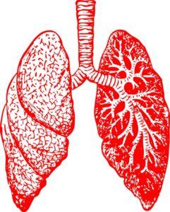 Grafika przedstawiająca płuca chore na pylicę