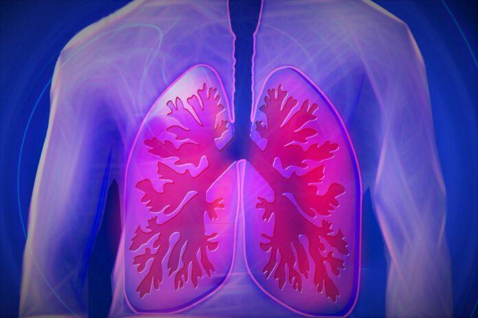 Pylica płuc